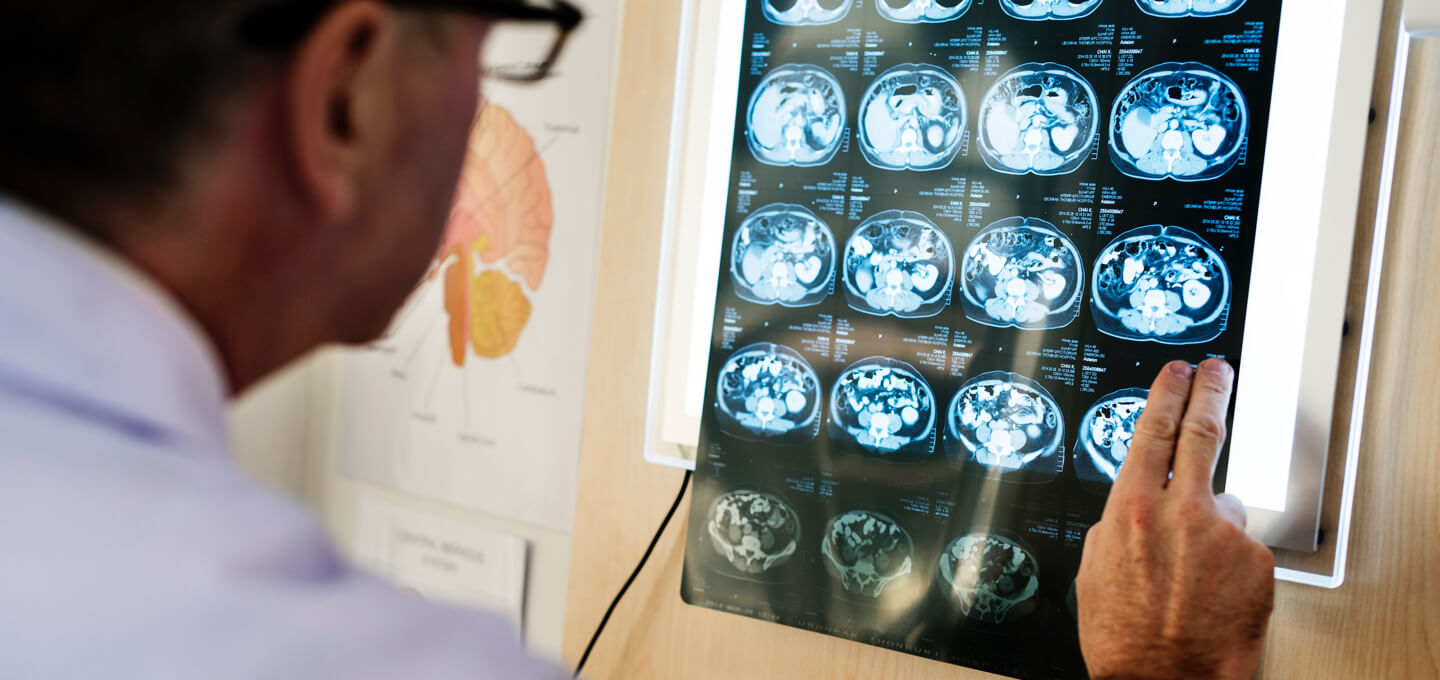 World-first brain imaging study to shed light on mind blindness